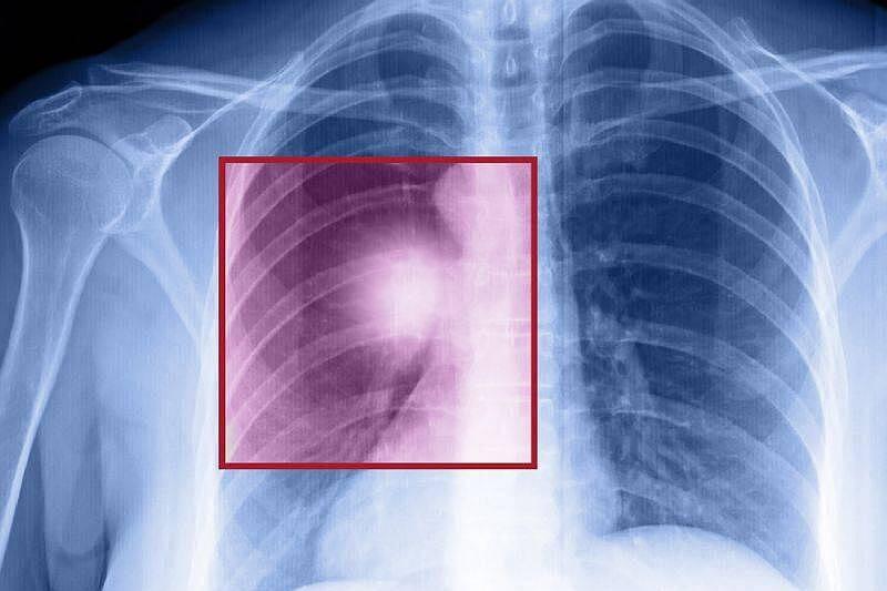 Co powinniśmy wiedzieć o zagrożeniu rakiem płuca?
