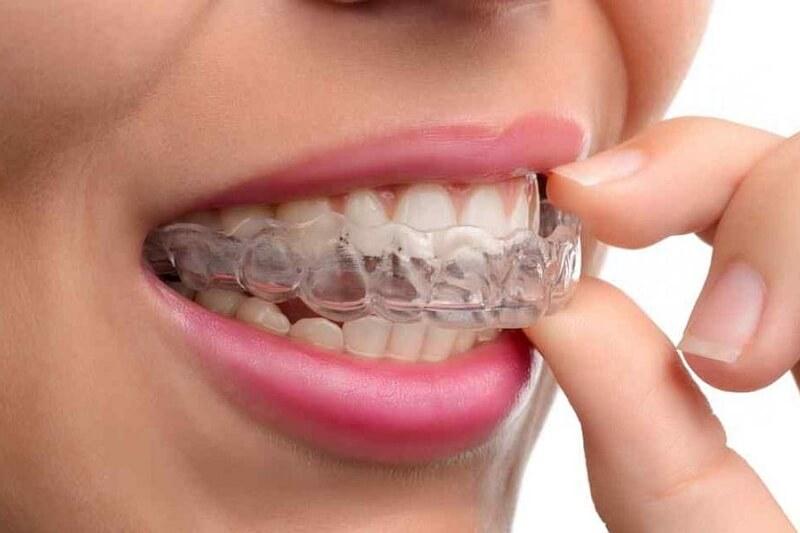Bruksizm, czyli zgrzytanie zębami