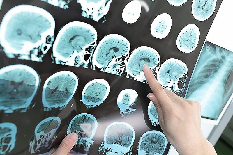 Postać móżdżkowa SM