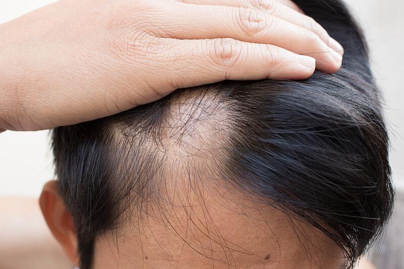 Łysienie plackowate – objawy i leczenie