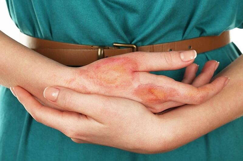 EGZEMA  czyli alergiczny wyprysk kontaktowy